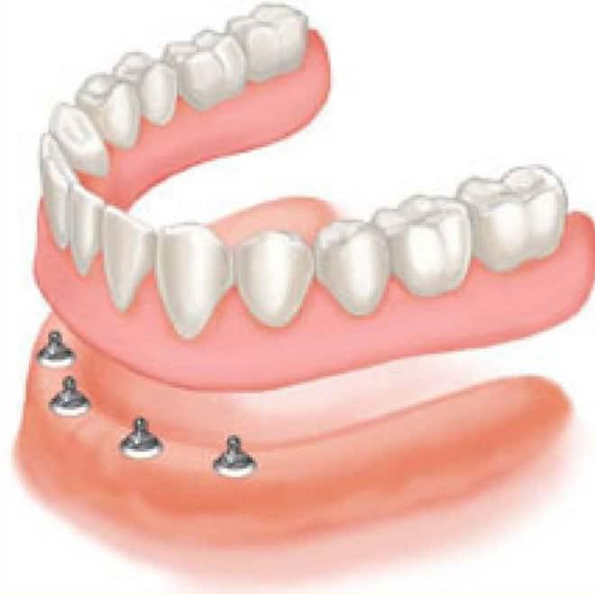 Implant Support Dentures
